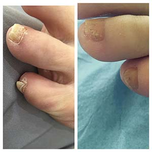 Fungal Nail Treatment Middlesbrough